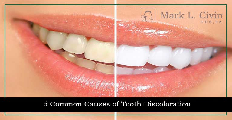5 Common Causes Tooth Discoloration