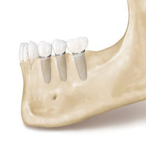 Dental Implants Mark L. Civin, D.D.S.