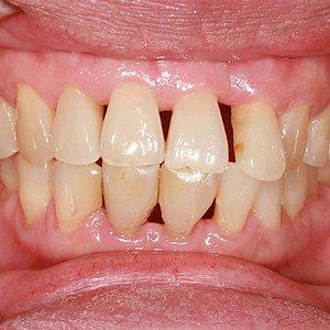 Gum Recession Mark L. Civin, D.D.S.,