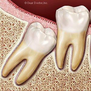 Wisdom Teeth Mark L. Civin, D.D.S.,